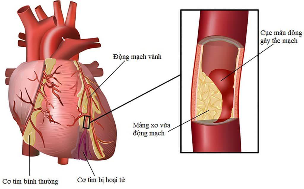 Nhồi máu cơ tim do xơ vữa mạch vành